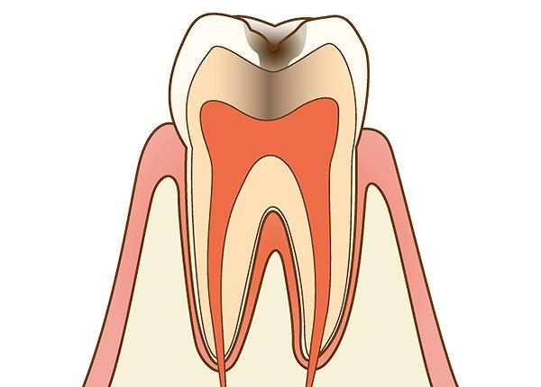 エナメル質の下の象牙質も虫歯に侵された状態