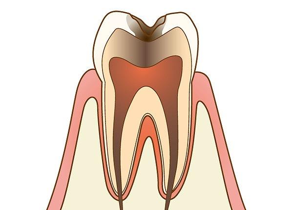 歯髄まで虫歯に侵された状態
