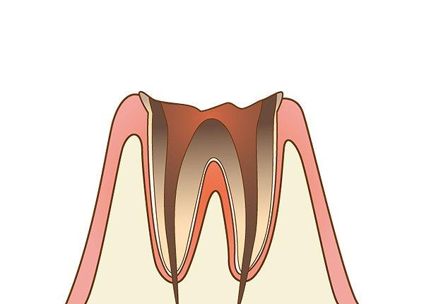 歯冠部がほとんどなく、歯槽骨まで虫歯が達している状態